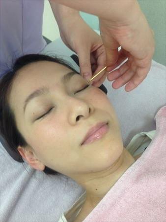 美容鍼灸倉敷